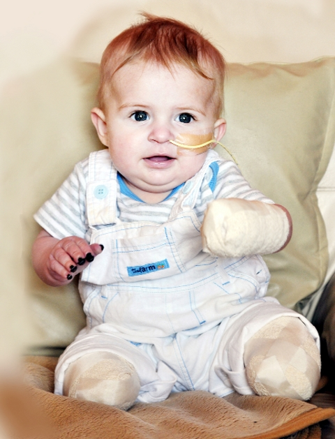 Colne mum hails baby Louie who battles back after meningitis and amputations