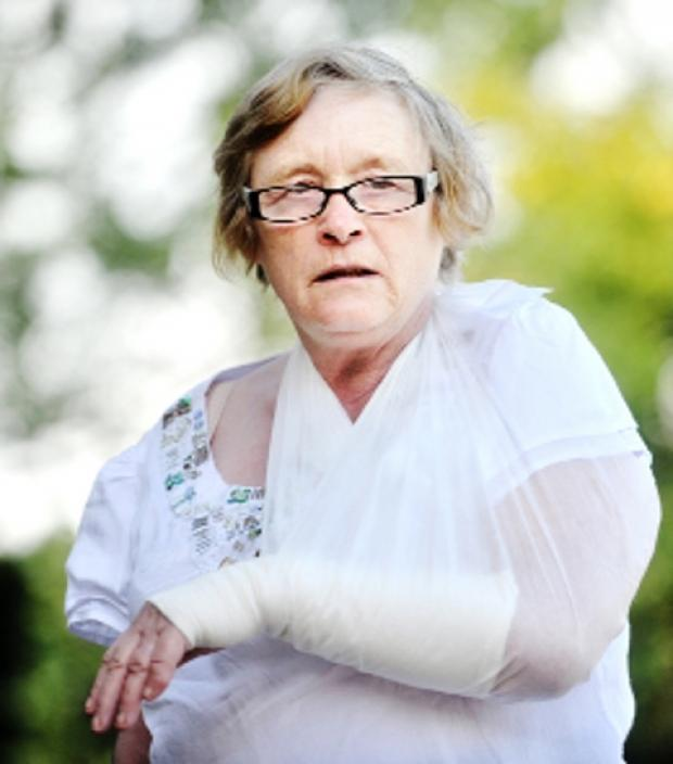 ACCIDENT Val Langtree, with her arm injury
