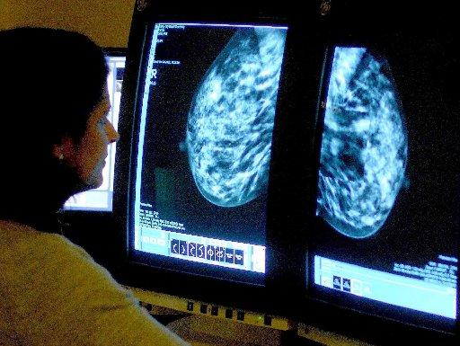 Breast cancer charities are encouraging more women to go for screening