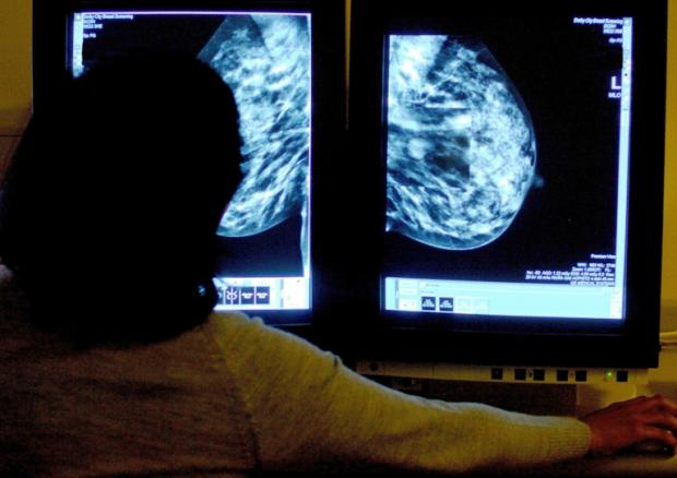 Pendle MP calls for quality care for breast cancer