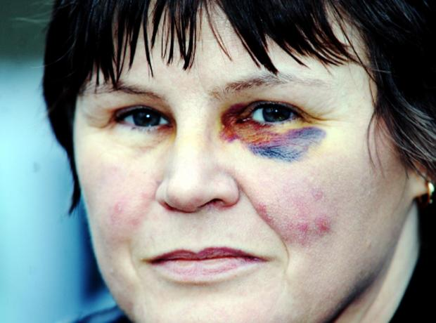 Karen Taylor sustained a black eye after the bollard smashes through her car