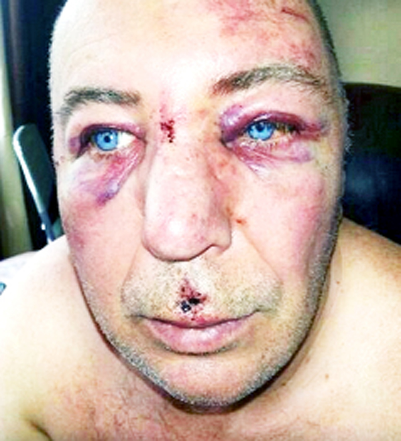 Ramsbottom United manager's dad suffers facial injuries after umbrella attack