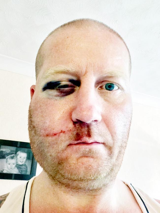 Former Burnley Rugby Captain In Freak Garage Door Accident Horror